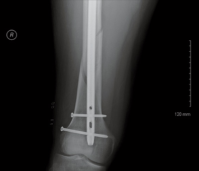 Christian Mason's femur, post-crash and post surgery. [Photo] Courtesy of Boulder Community Hospital