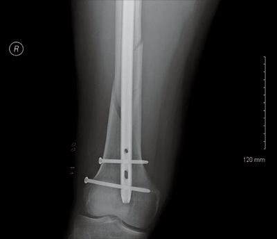 Christian Mason's femur, post-crash and post surgery. [Photo] Courtesy of Boulder Community Hospital